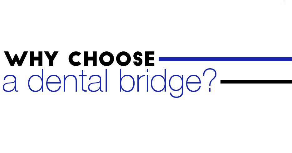 dentalbridgechoose