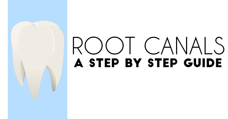 rootcanalsstepbystep